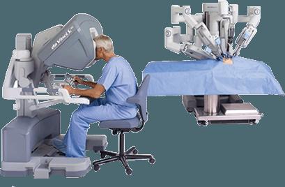 Advances In Colon Surgery Colon Cancer Treatment San Jose Ca