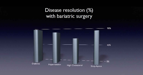 Life After Bariatric Surgery